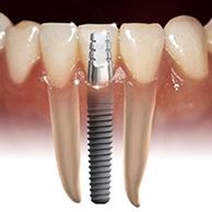 implantologia def